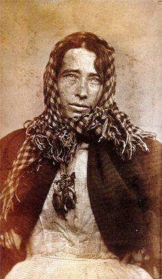 Photographer unknown, Psychiatric patient diagnosed with melancholy, 1876