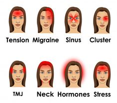 Types of headache illustrated on a woman face Vector | Premium Download