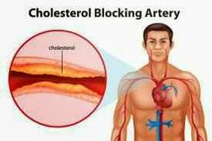 Watch This Video Captivating Clear Blocked Arteries with Natural Health Remedies Ideas. Splendid Clear Blocked Arteries with Natural Health Remedies Ideas. Supplements To Lower Cholesterol, Lower Cholesterol Naturally, High Cholesterol Levels, Lower Your Cholesterol, Cholesterol Lowering Foods, Cholesterol Symptoms, How To Control Sugar, Causes Of Heart Disease, Clogged Arteries