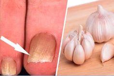 Remédios caseiros milagrosos para tratares a micose das unhas