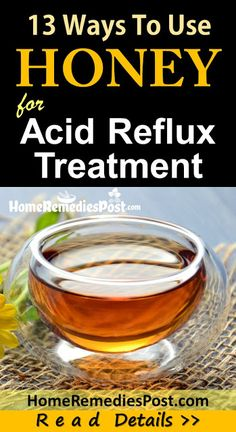More than 60 million Americans have heartburn and also acid reflux a minimum of once a week. Attempt these heartburn natural remedy for quick heartburn alleviation. Acid Reflux Natural Remedies, Natural Home Remedies, Remedy For Acid Reflux, Recipes For Acid Reflux, Home Remedies For Gerd, Natural Cure For Heartburn, Acid Reflux Treatment, Honey, Medicinal Plants