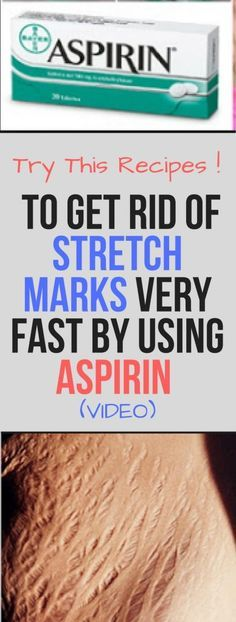 HOW TO GET RID OF STRETCH MARKS VERY FAST BY USING ASPIRIN (VIDEO)