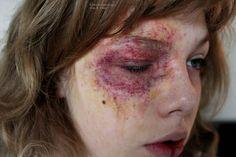 Kinkx: Severe bruise damage video tutorial