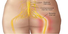 Zeg maar dag tegen pijn in de rug! Hier is hoe je afrekent met rugpijn op een Natuurlijke Wijze! Succesvol In 95% van alle gevallen!