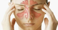 Natural Remedies For Sinusitis Home Remedies for Nasal Congestion - Get rid of sinus infection. Remedies for sinus infection. Cure sinus infection fast and naturally. Congestion Relief, Chest Congestion, Nasal Congestion, Congested Nose, Sinus Infection Remedies, Sinus Problems, Health Problems, Allergy Remedies, Bones