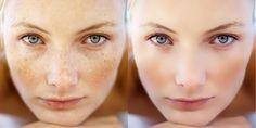 Лазерная шлифовка лица: процедура, результат, отзывы | HOCHU.UA Photoshop, Behance, Game Of Thrones Characters, Beauty, Internet, Design, Photo Retouching, Face, Beleza