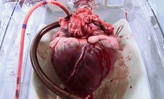A donor heart beating in a mechanical system which keeps it warm, oxygenated, with nutrientenriched blood pumping through.