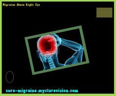 Migraine Above Right Eye 190204 - Cure Migraine