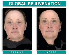 Global Rejuvenation | #Laser Surgery | www.derickdermatology.com Laser Surgery, Beauty, Beauty Illustration
