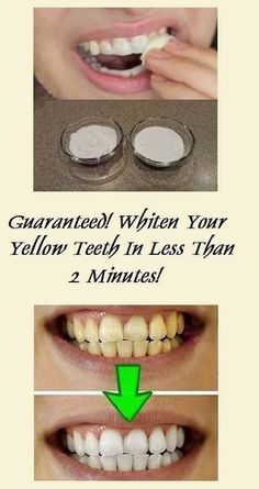 Yellow teeth are quite an embarrassing issue so numerous people especially smokers avoid to smile and laugh in front of others just to hide them. Yet white teeth are not an impossible goal to Oral Health, Dental Health, Dental Care, Gum Health, Dental Hygienist, Dental Implants, Teeth Whitening Remedies, Natural Teeth Whitening, Natural Toothpaste