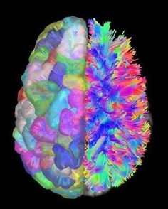 Researchers Show How Brain's Wiring Leads to Cognitive Control