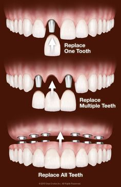 Whether you need one tooth replaced, multiple teeth replaced, or every single tooth replaced, dental implant procedures can be done to ensure a beautiful smile at Advanced Dentistry South Florida.