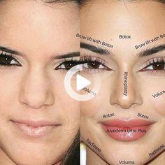 Why celebrities like Bella Hadid, Ariana Grande, and Kylie Jenner are suspected of having Botox brow lifts. #celebrities #brow lift Botox Brow Lift, Online Coloring, Instagram Repost, Bella Hadid, Beautiful Celebrities, Eyeshadow Palette, Kylie Jenner, Ariana Grande, Brows