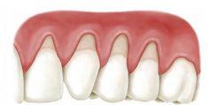 Um blog sobre Periodontia e Implantodontia.