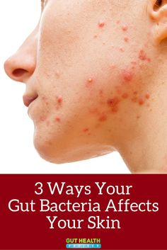 The secret to blemish-free skin may lie in your gut bacteria. Find out three ways your gut affects your skin and what you can do to improve your complexion. Gut Health, Health Tips, Health And Wellness, Healthy Skin, Healthy Life, Healthy Living, Leaky Gut Syndrome, Gut Bacteria, How To Get Rid Of Acne