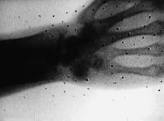 X-Ray GIFs | Litbloc.com