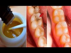 Reverse Cavities Naturally and Heal Tooth Decay