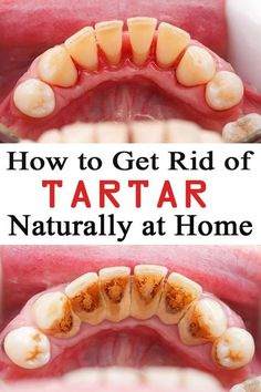 How to Prevent Tartar Buildup, Whiten Teeth, and Avoid Tooth Decay In 5 Steps #howtobeautytips