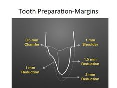 Metal Crown, Cosmetic Dentistry, Dental, Teeth, Google Search, Tooth, Dentist Clinic, Dental Health
