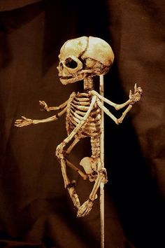 Extreme conjoined skeleton