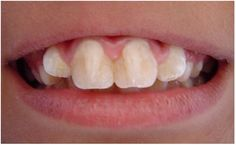 Dentaltown - Talon cusp is a well delineated anomalous structure located on the surface of an anterior tooth. The exact etiology is unknown. Lingual talon cusps are widely reported but literature reports of facial talon cusps are few and mainly unilateral. Bilateral labial talon cusps have been reported, but only on mandibular teeth. This case documents a rare case of an isolated developmental abnormality of bilateral labial talon cusps on permanent maxillary central incisors in an 8 year…