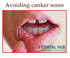 Avoiding canker sores during Braces Treatment