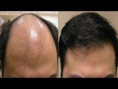 Kel Kafadan Bile Saç Çıkaran Doğal Formül - 100% Denenmiş Kesin Çözüm Önerileri - YouTube