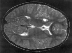 MRI scan lyme neuroborreliosis infarction basal ganglia  What occurs in brain MRI with Lyme