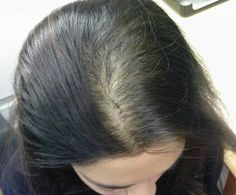 Gastric Bypass Causes Hair Loss: Can It Be Avoided? DEFINITELY need to take these vitamins to minimize this from happening to me!!!!