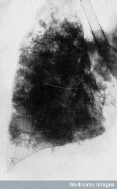 X-ray photograph of the lungs of a patient after death from tuberculosis (1903).