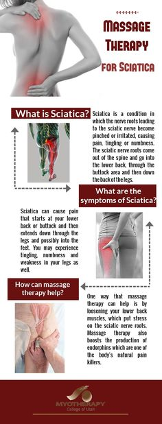 Sciatic Pain, Sciatic Nerve, Sciatica, Do You Feel, Massage Therapy, Infographics, Rid, Roots, College