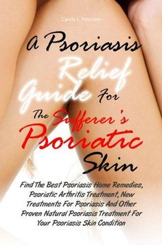 A Psoriasis Relief Guide For The Sufferer's Psoriatic Skin