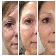 4 weeks with Nerium AD Day and Night. 2 of those weeks with Nerium Eye Serum. Wow!!! Fitmomma.nerium.com