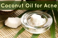 2 Ways to Use Coconut Oil for Acne