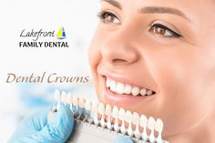 A dental crown is a tooth crown, also known as a tooth cap, placed over a damaged tooth. We are the best clinic for best dental crown cap for front teeth in Burlington. Call us now to know all about dental crown procedure and dental crown cap cost. Dental Surgery, Dental Implants, Dental Hygienist, Dental Crown Procedure, Tooth Crown, Teeth Pictures, Affordable Dental, Dental Cosmetics, Dental Bridge