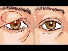 Drooping Eyelids, Droopy Eyes, Droopy Eye Makeup, Saggy Eyelids, Round Face Makeup, Hooded Eyelids, Makeup Eyes, Beauty Skin, Health And Beauty