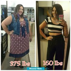 Before and After 215 lb weight loss! VSG Gastric Sleeve before and after. Anything is possible. #fitnessbeforeandafterpictures, #weightlossbeforeandafterpictures, #beforeandafterweightlosspictures, #fitnessbeforeandafterpics, #weightlossbeforeandafterpics, #beforeandafterweightlosspics, #fitnessbeforeandafter, #weightlossbeforeandafter, #beforeandafterweightloss