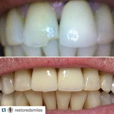 """#Repost @restoredsmiles with @repostapp.  Failing old #metal #crown on #9 and chipped #8 tooth with an old failed filling. Pt. only wanted to address two front teeth. It is always difficult two match two front teeth to remaining dentition that has a collection of """"character"""" and wear from over the years but it turned out well. This was another earlier case when I wasn't so good at remembering to take pics so upper pic is taken off my computer. Bottom pic is around two years post op. which…"""