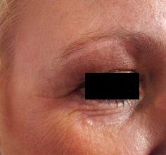 foto voor de behandeling met Bootoolux 30 dagen anti-aging kuur kit. het resultaat is te zien op www.bootoolux.nl
