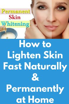 How to Lighten Skin Naturally, at Home Today I will share permanent skin whitening magical remedies to get the fair, glowing and spotless skin. This the remedy is very easy to make and it is effective. First remedy- Ingredients you will need- 2 table Natural Skin Whitening, Whitening Cream For Face, Whitening Face, Best Lightening Cream, Skin Care Masks, Lighten Skin, Skin Care Remedies, Natural Remedies, Acne Remedies