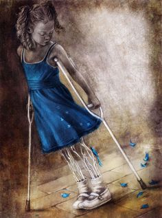 Osteogenesis Imperfecta.......painting by Beatriz Martin Vidal