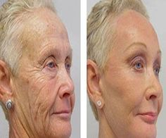 Skin Tightening Better than botox A mother reveals the anti-aging trick of the stars! Viewable results in 14 days Anti Aging Tips, Best Anti Aging, Anti Aging Skin Care, Creme Anti Age, Anti Aging Cream, Organic Skin Care, Natural Skin Care, Cara Fresca, Prevent Wrinkles