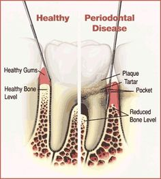 NATURAL CURE FOR PERIODONTAL DISEASE