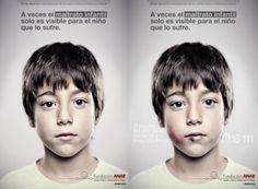 """""""A MENSAGEM SECRETA Neste caso, espectadores com estatura igual ou inferior a 1,35 metros – a altura mais comum de uma criança até 10 anos em Espanha, segundo um estudo da ANAR – conseguem ver uma cara com marcas de agressão e, para além da mensagem supracitada, uma outra que lhes oferece ajuda: """"Se alguém te magoa, liga-nos e nós ajudamos-te"""", seguindo-se o número de telefone de apoio."""" by P3  Design by Grey group Client: ANAR"""
