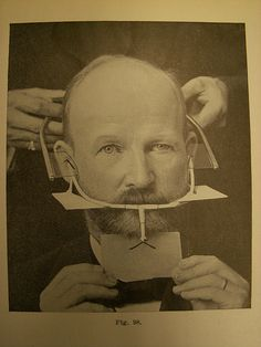 Vintage Orthodontic Braces   SS Patients !! How grateful are we that this isn't what braces look like anymore !!!!?!?