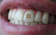 Scientists have developed a tiny sensor that can track certain chemicals and nutrients. But the potential uses of the sensor extend beyond diet. Food Tracking, Diet Tracker, Nutrition Tracker, Human Teeth, Dentist Appointment, Teeth Implants, Dental Implants, Dental Bridge, Dental Crowns