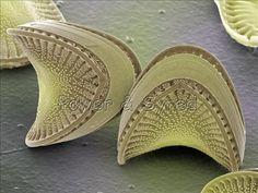 Diatom frustules (Campylodiscus sp.)