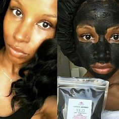 Acne treatment, Face Masks, Face Serums, Hyperpigmentation Treatment and More! Plant Based Facials in Store Butter Bar, Face Serum, Acne Treatment, Natural Skin Care, Plant Based, Facial, Skincare, Glow