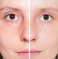 Tips Mengencangkan Kulit Wajah