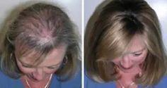 Trucos para acelerar el crecimiento del cabello: Un mes después, no podía creerlo…